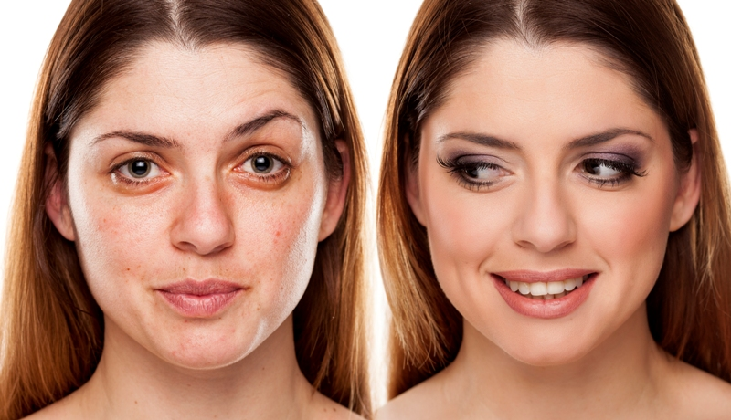 Types Effects Cost Of Skin Dermal Fillers In Delhi India