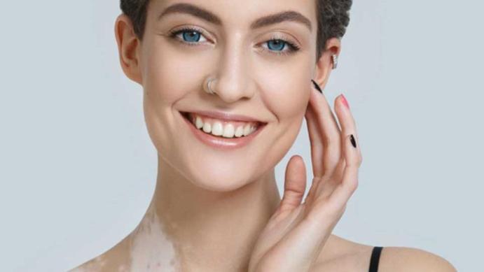 Best Vitiligo Treatment In Delhi West Delhi White Patches Treatment In Delhi Dermaworld Skin Clinic