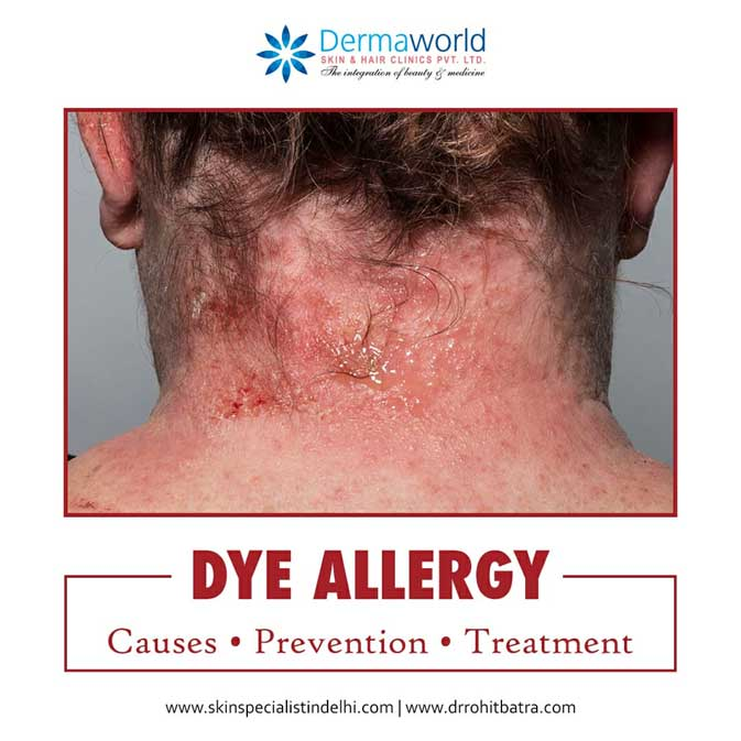 Hair Dye Allergy Treatment Causes Prevention Dermaworld Skin Clinic